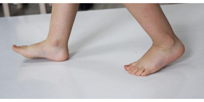 Лечебная гимнастика при плоскостопии у детей дошкольного возраста.